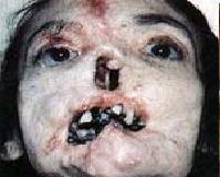 Sifilis - Dobrodošli na moj blog, ovdje možete naći